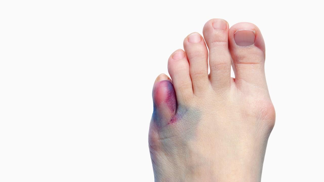 Ушиб пальца на ноге: что делать в домашних условиях и как 63