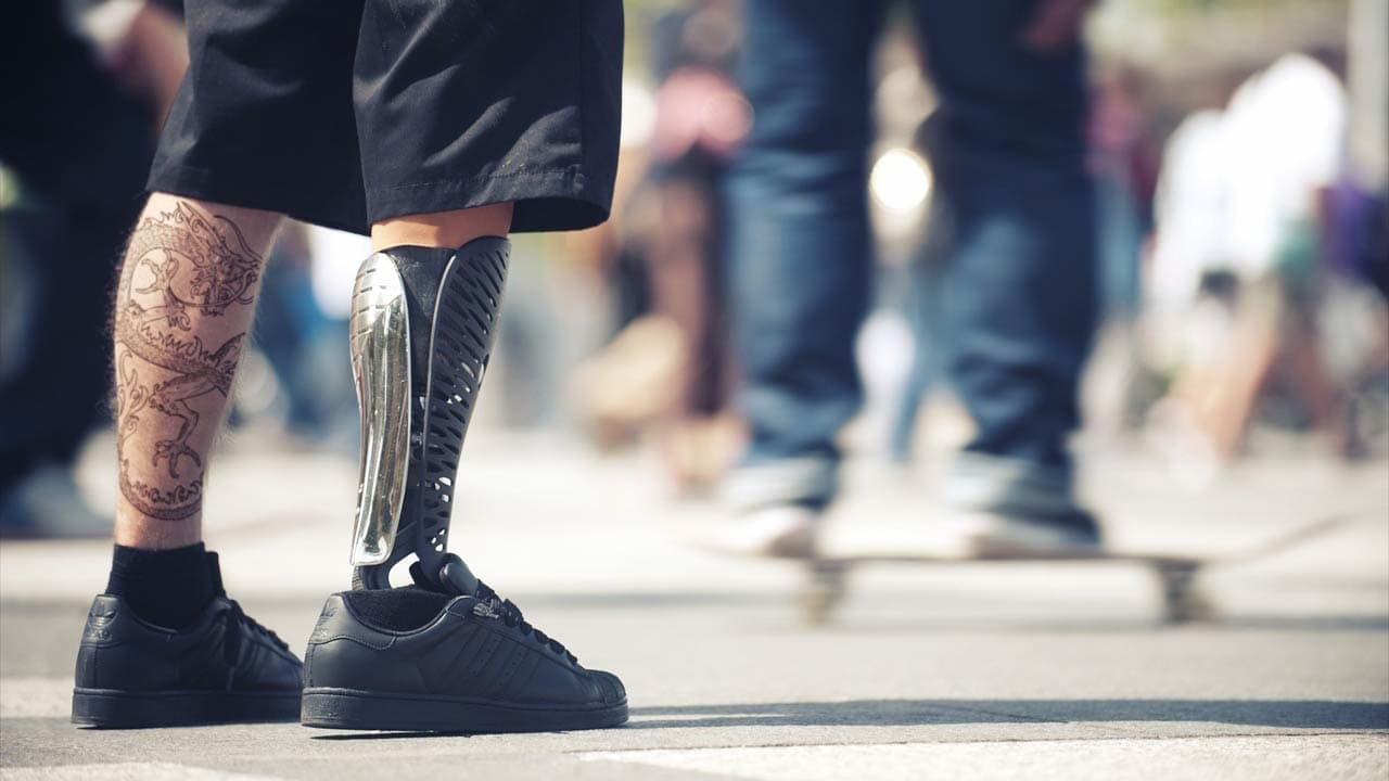 These 3-D Printed Covers Make Prosthetics Stylish