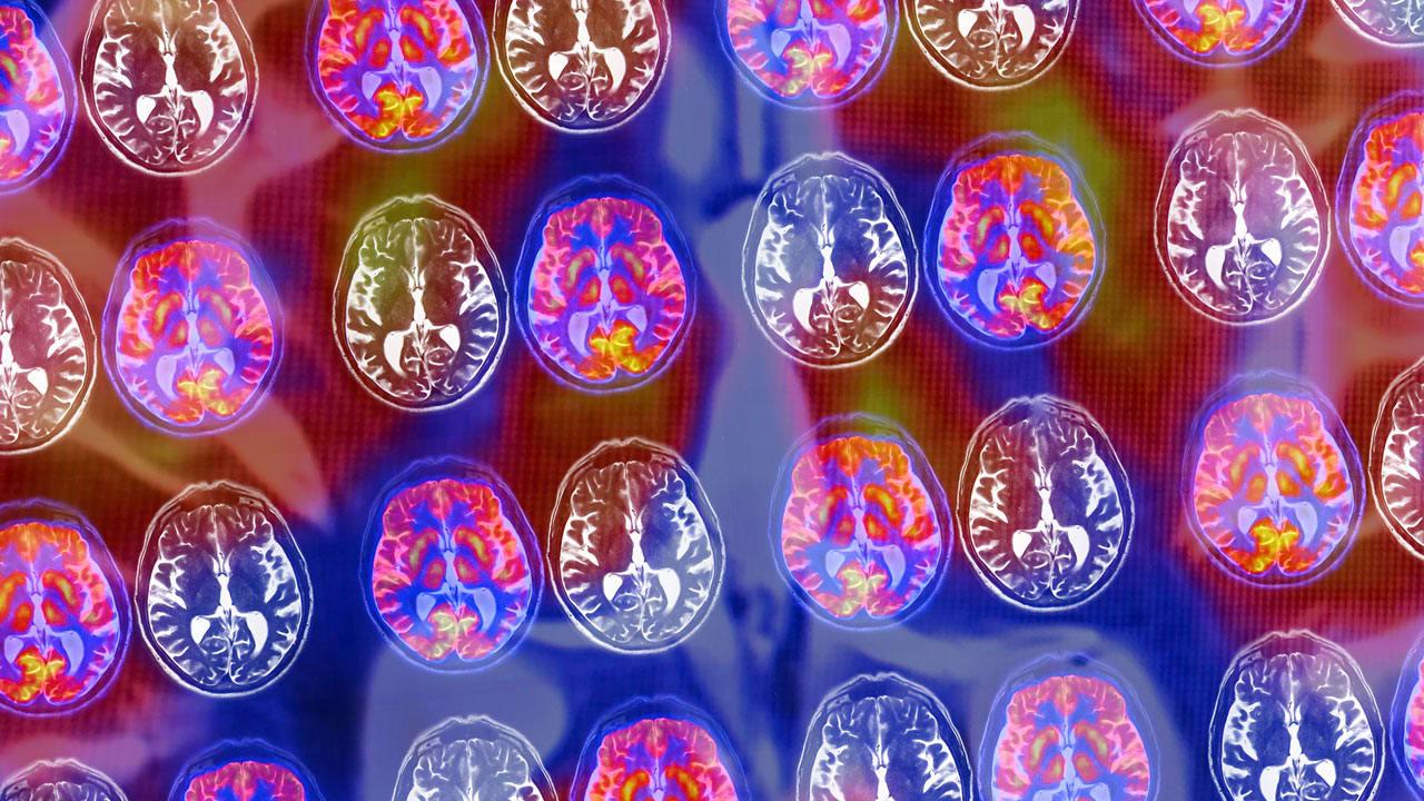 Brain Philosophy cover image