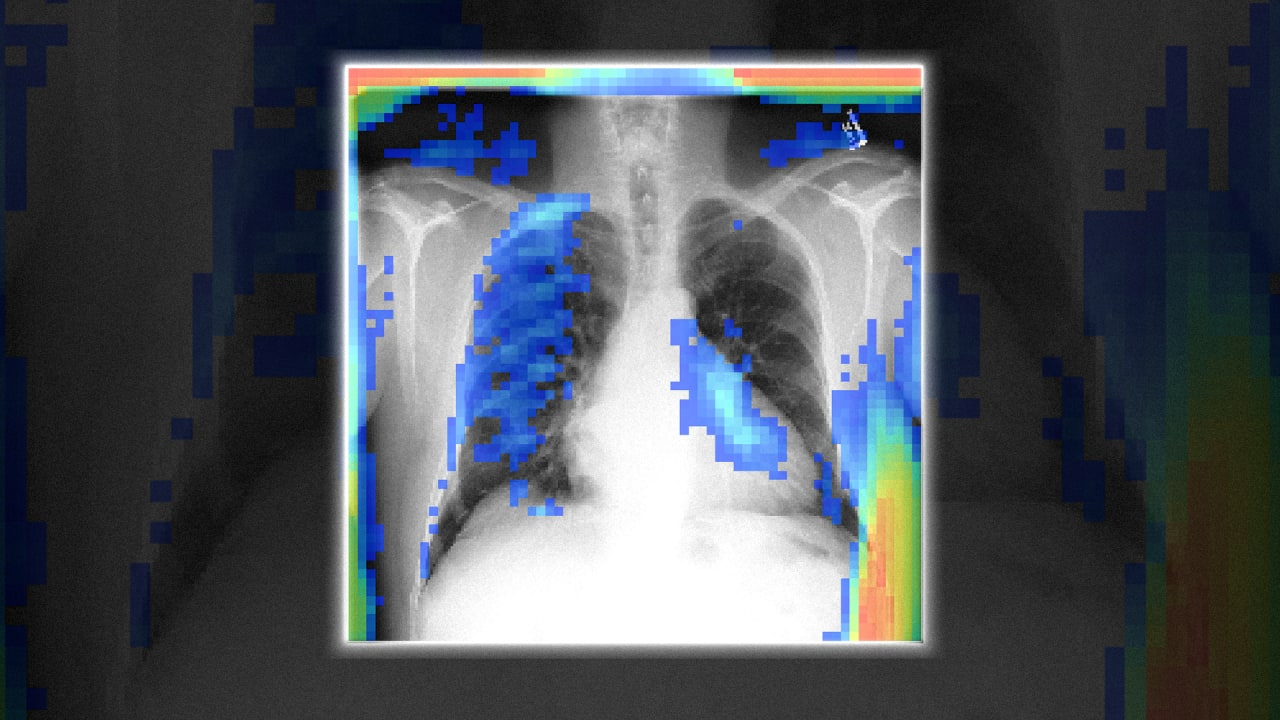 QnA VBage This free AI reads X-rays as well as doctors