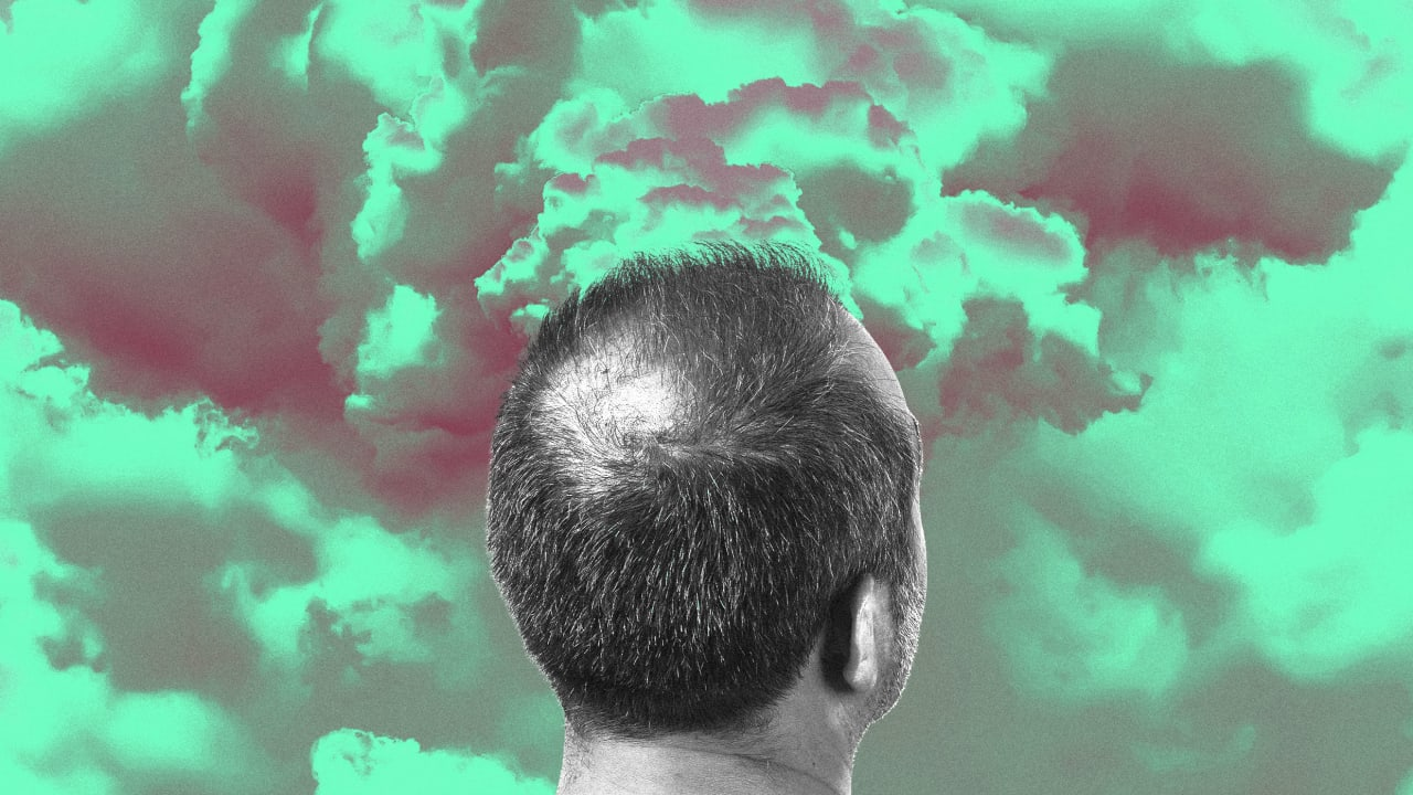 Air pollution might be why you're going bald
