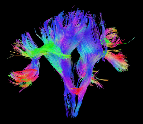 8 Mind-Blowing Images Of The Brain At Work